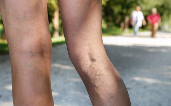 Χρόνια φλεβική νόσος: Τι είναι και πως θεραπεύεται;