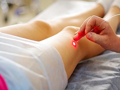 Laser Θεραπεία Κιρσών